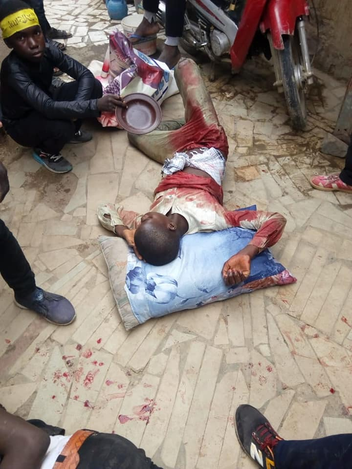 injured on ashura processions attacked by police in nigeria