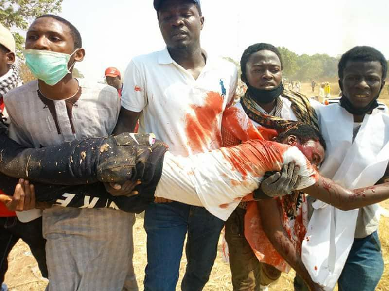 free zakzaky protest in abuja on 10th jan, injured by police